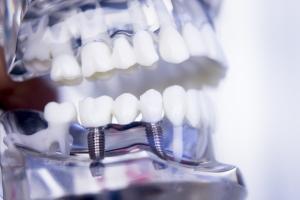 Reabilitação Oral com Implante